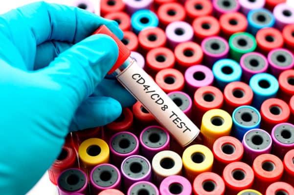 Иммунный статус и вирусная нагрузка