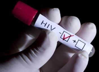 Пересадка стволовых клеток, возможно, исцелила от ВИЧ еще двух людей