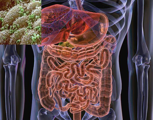 Кишечные бактерии могут вызвать воспаление и обострять ВИЧ-инфекцию