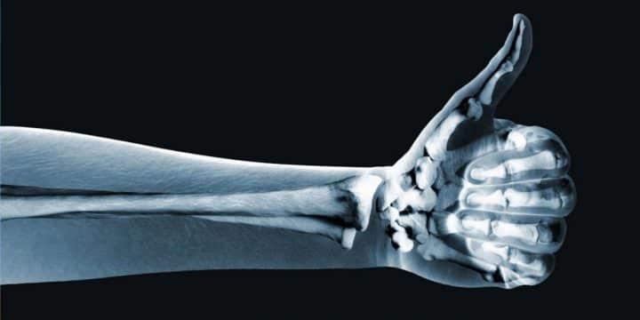 ВИЧ и здоровье костей