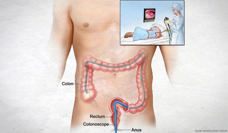 Тест на скрытую кровь в кале эффективно диагностирует рак кишечника