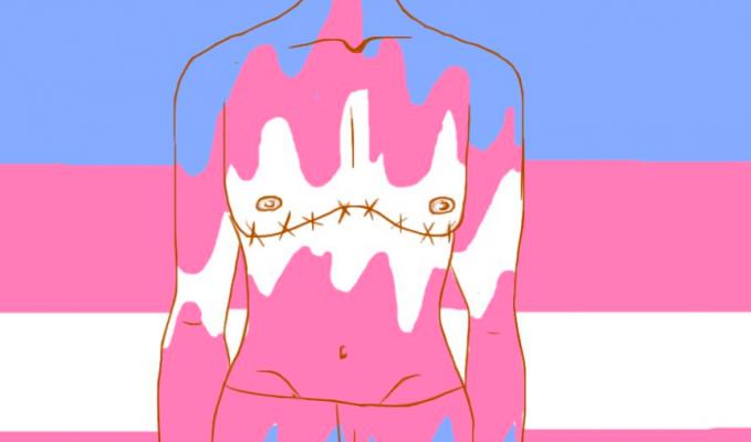 трансгендерный гей