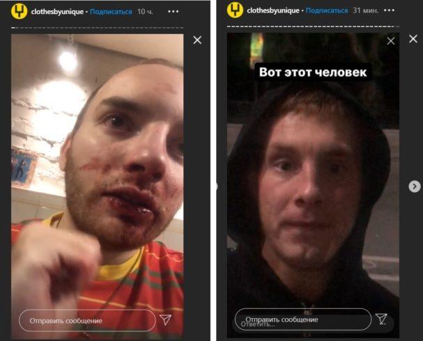 Потерпевший Андрей Аллегров после инцидента (слева) и нападавший Павел Зуев (справа). Скриншот из сториз UNIQUE